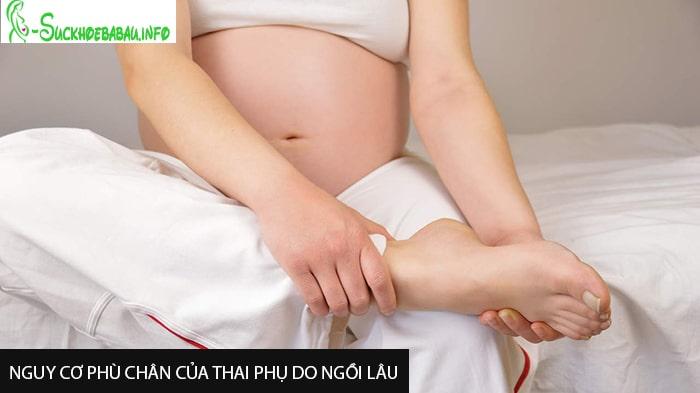 Nguy cơ phù chân của thai phụ do ngồi lâu