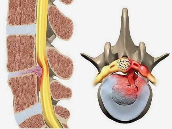 Tìm hiểu về bệnh thoát vị đĩa đệm cột sống thắt lưng L4-L5 1