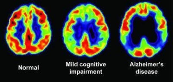 Bệnh Alzheimer liệu có di truyền không? 3
