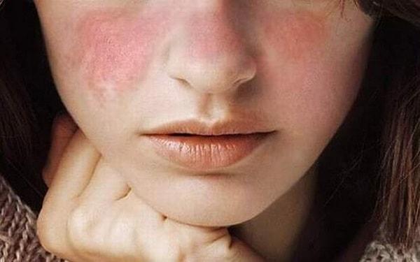 bệnh Lupus ban đỏ có nguy hiểm không 1